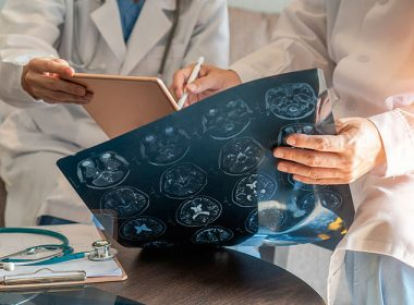 Most People Hospitalized For COVID-19 Suffer Neurological Disorders – Research Finds