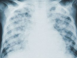 Researchers Find Extensive Lung Damage in COVID-19 Corpses