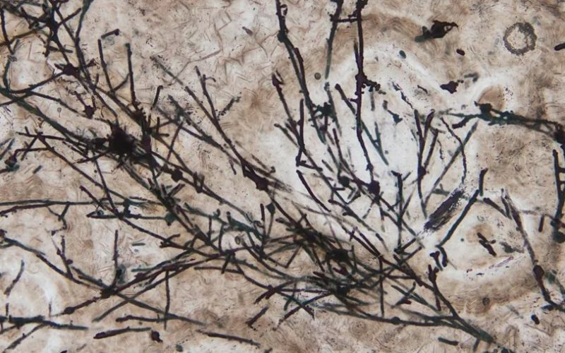 Scientists Unearth 635-Million-Year-Old Fungi Fossil That Contributed to Life Forms on Earth